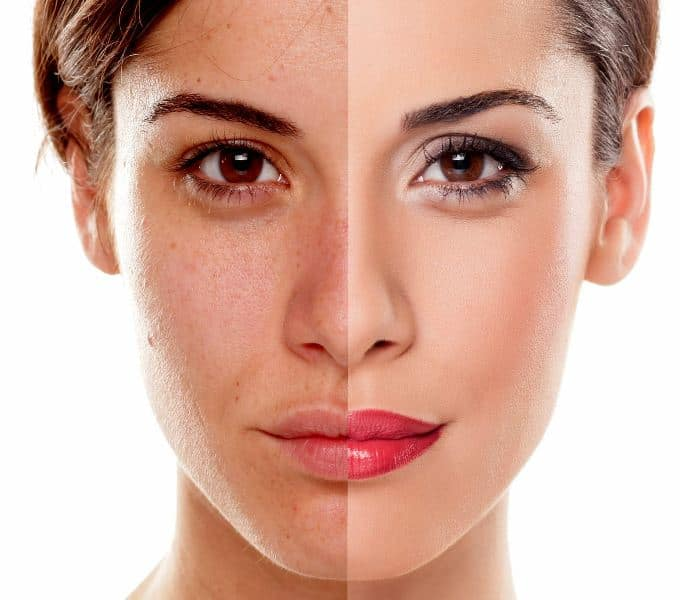 IPL skin rejuvenation and pigmentation treatments in Clacton on sea at Admired clinc