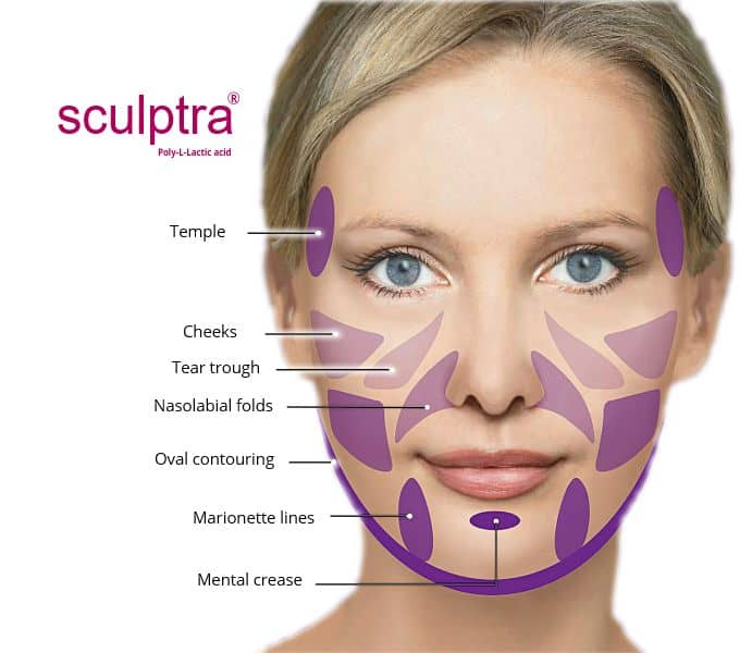 Sculptra iin Clacton on sea at Admired clinic
