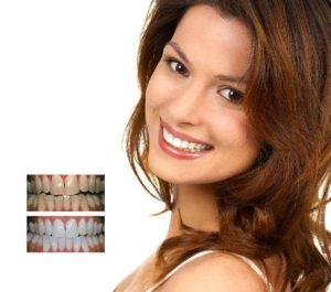 Dentist in Clacton on sea offering laser teeth whitening at Admired clinic